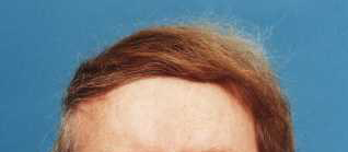 Combover_31
